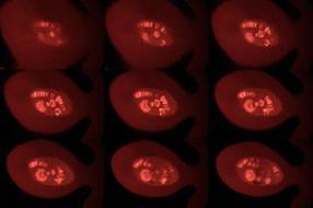 Erbgutkopie reist im Protein-Koffer_2