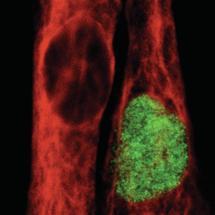 Tor zur Therapie mit humanen Muskelstammzellen aufgestoßen