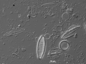 Revolutioniert DNA-Barcoding die Gewässergüteanalyse?