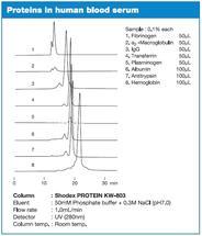 PROTEIN KW Serie – Proteine im menschlichen Blutserum