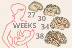 Breast milk linked to significant early brain growth in preemies
