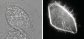Nanoinjektion steigert Überlebensrate von Zellen