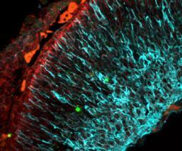 Descubren un nuevo mecanismo que regula la generación de nuevas neuronas modulando el metabolismo
