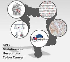 Un nuevo marcador genético explica hasta el 1,4% de los casos de cáncer de colon hereditario